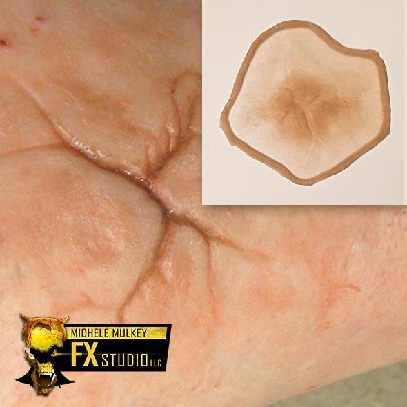 FX Extra Large Healed Scar